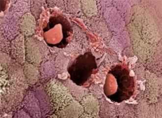 结肠直肠癌在年轻人中发病率升高