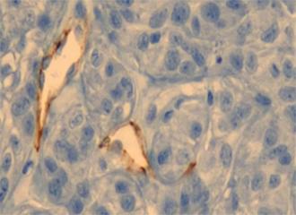 金纳米颗粒光热疗法-攻克癌症新思路