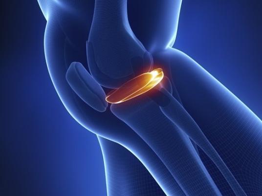 加减治疗膝关节退行性关节炎