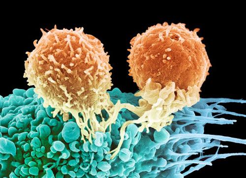 与癌症耐药性作斗争