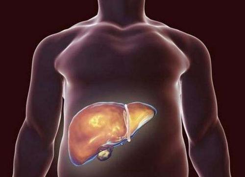 无痛无创,也能测肝脏脂肪含量